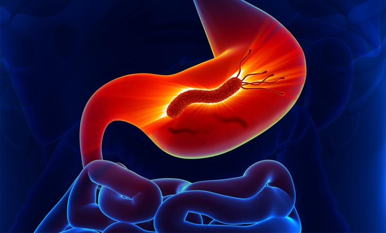 Diệt vi khuẩn hp cách phòng ung thư dạ dày hiệu quả