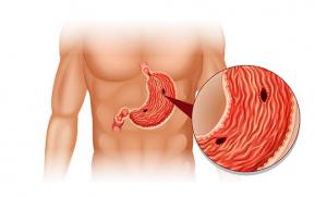 ung thư dạ dày