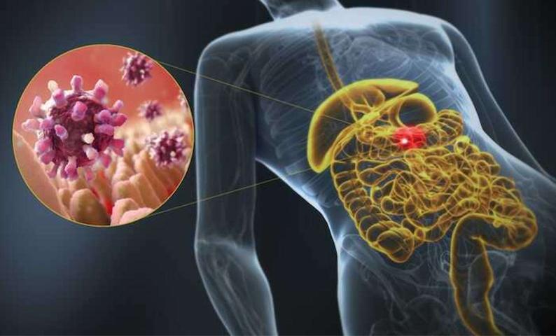 Viêm dạ dày ruột gây đau bao tử