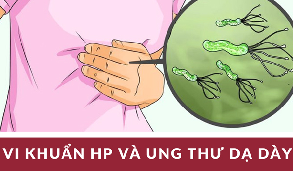 cách trị bao tử nhiễm khuẩn hp